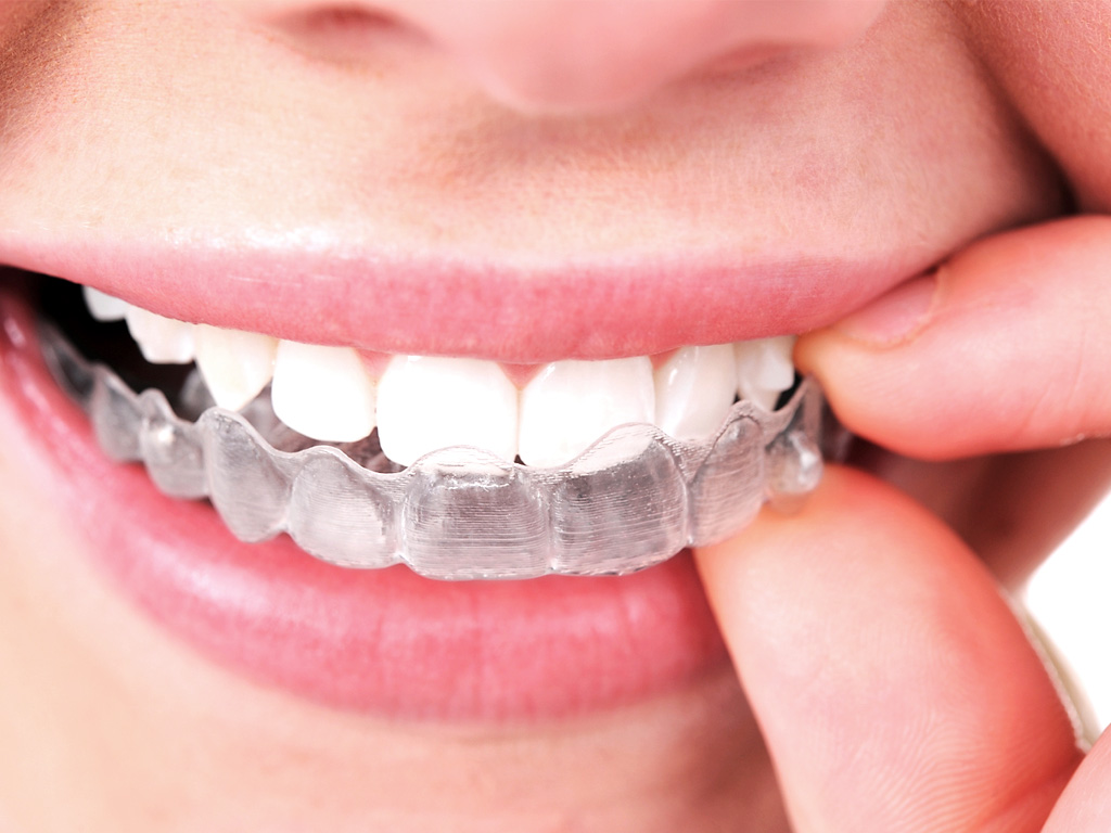 Importance of Retainers